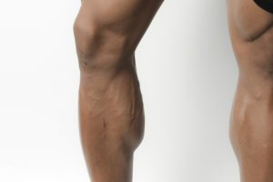 筋力トレーニングの基礎!下肢の機能を最大限に引き出す2つのポイント